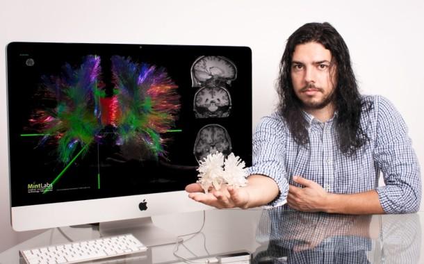 'Informático' da Universidade do Minho cria um 'Google Maps do Cérebro'