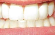 Ordem dos Médicos Dentista aplaude suspensão da publicidade 'Portugal a Sorrir'