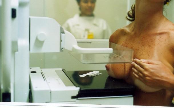 2900 mulheres de Amares estão a ser convidadas a fazer mamografia