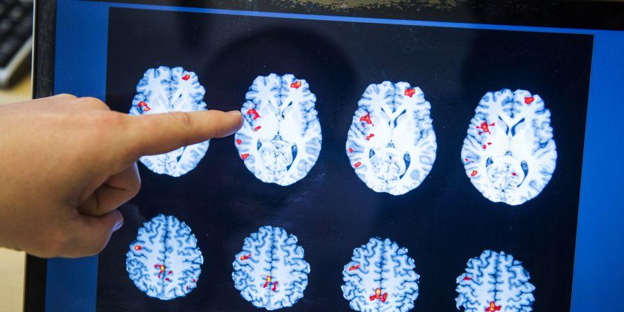 Investigação da Fundação Champalimaud descobre que o cérebro é mais complexo e diferente do que se pensa