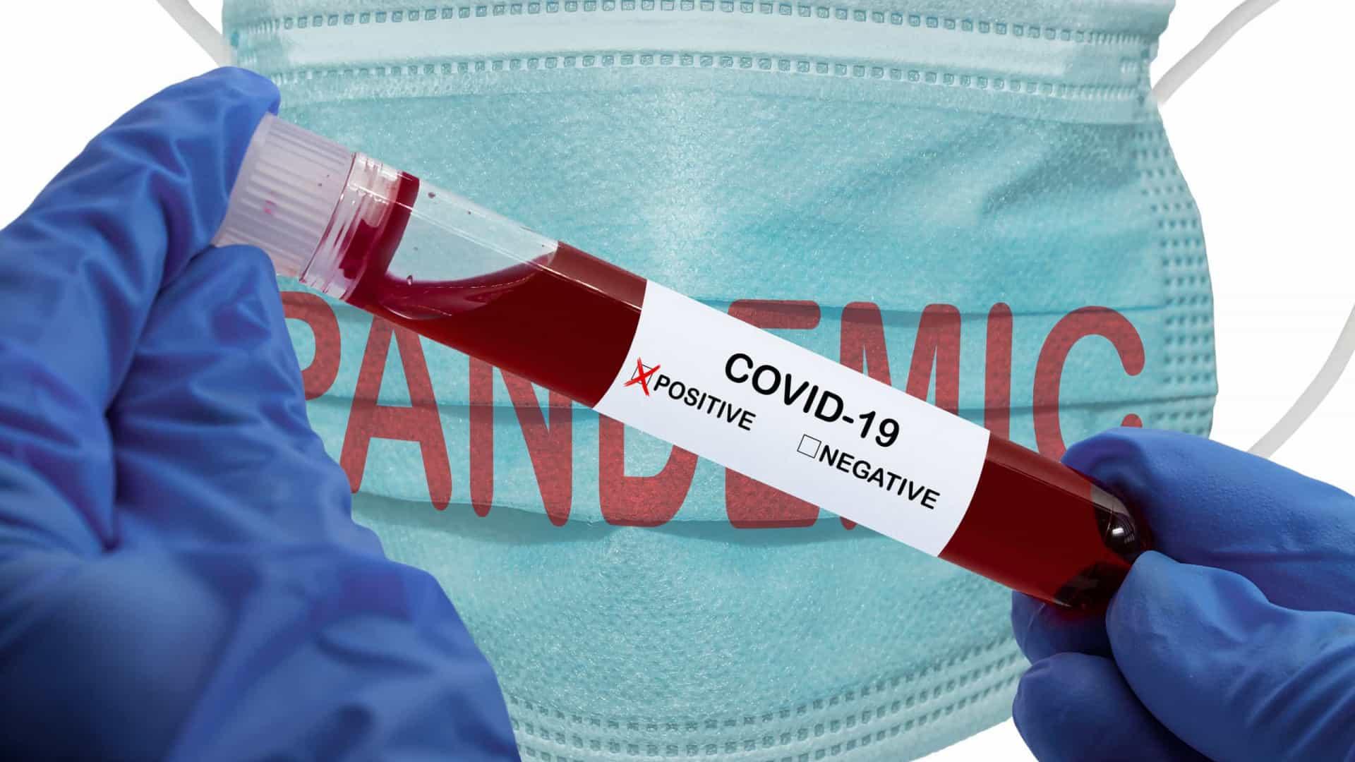 Covid-19. 312 casos no distrito de Braga, 100 mortes no país